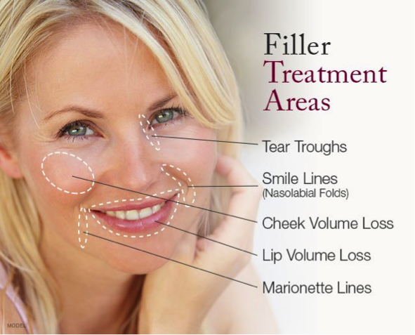 Filler Treatments
