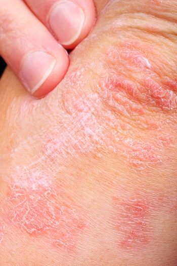 Psoriasis are itchy, painful plaques that appear on the skin.